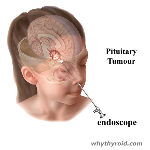 Endoscopic Transnasal Approach